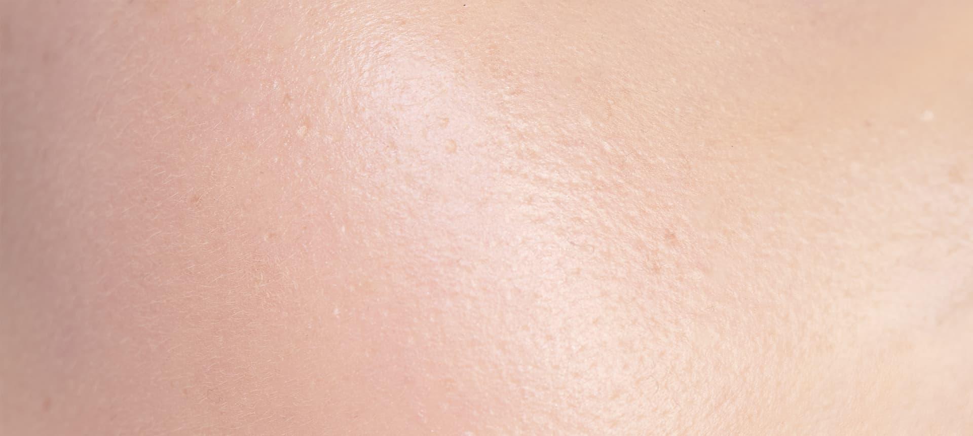Impactos do Exposoma: Os efeitos na pele