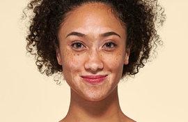 Como maquilhar pele com vitiligo