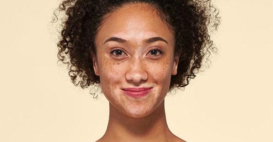 Como maquilhar pele com vitiligo em três passos
