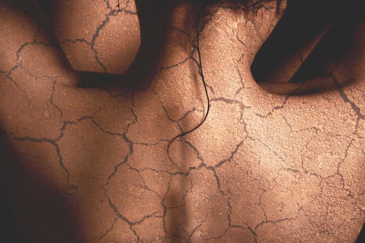 Dicas para Cuidar da Pele seca