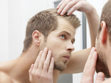Queda de cabelo nos homens: o que fazer para evitar