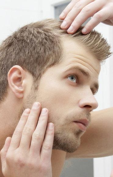 6516f5256 Queda de cabelo nos homens: porque ocorre e o que pode fazer para a evitar