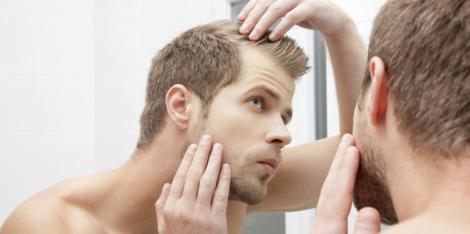 Queda de cabelo nos homens: porque ocorre e o que pode fazer para a evitar