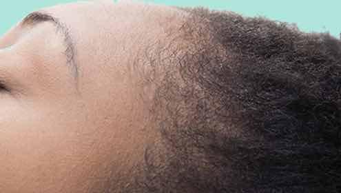 Ethnic_scalp