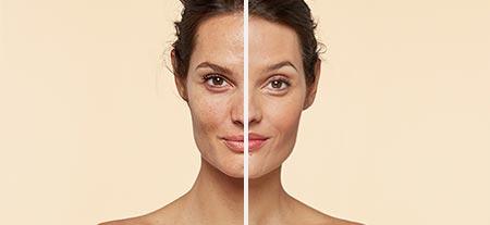 v_before_after-dark_spots.jpg